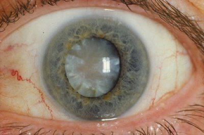 Cataract - Notice the cloudy lens;